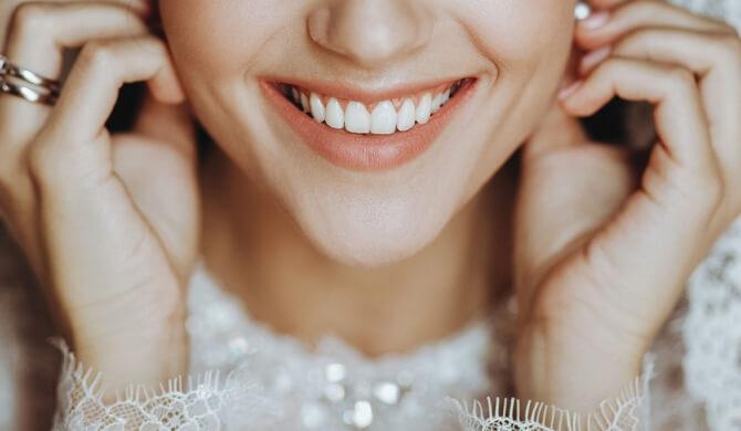 Kaip paruošti šypseną svarbioms progoms