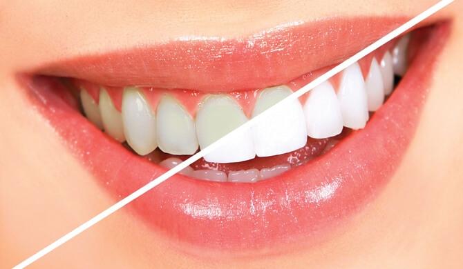 Dantų balinimas: už ir prieš