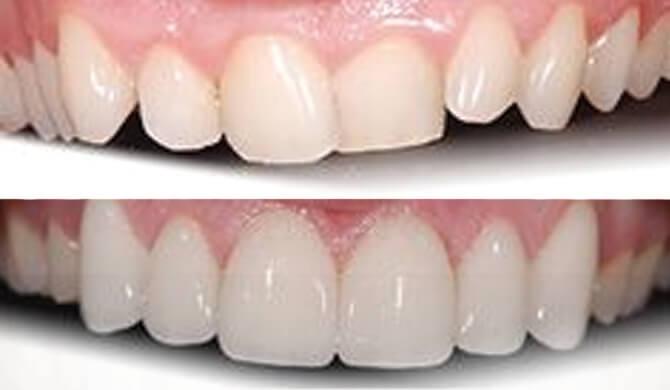 Ortodontinis gydymas ir protezavimas laminatėmis