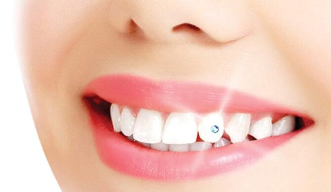 Dantų papuošalai – mada kenkianti žmogaus sveikatai?