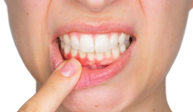Siaubas baubas periodontitas: ką reiktų žinoti?