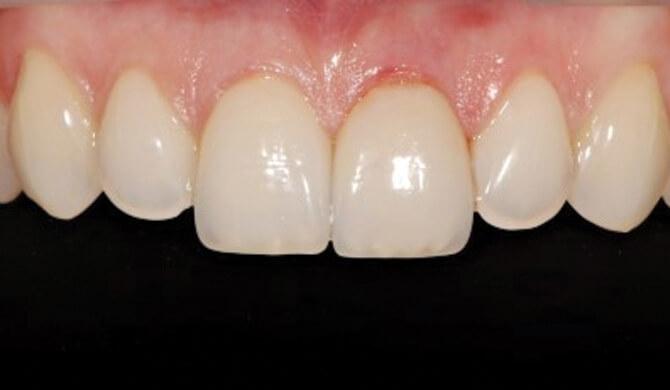 Sudėtingas danties atstatymas implanto pagalba