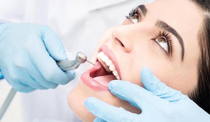 Dantų šaknų kanalų gydymas: naudinga informacija
