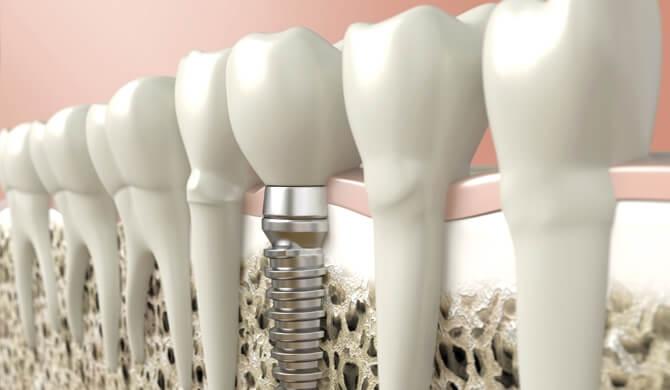Dantų priežiūra po implantacijos
